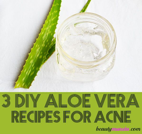 3 Diy Aloe Vera Recipes For Acne Prone Skin Beautymunsta Free Natural Beauty Hacks And More Moisturizer For Oily Skin Aloe Vera Recipes Diy Moisturizer
