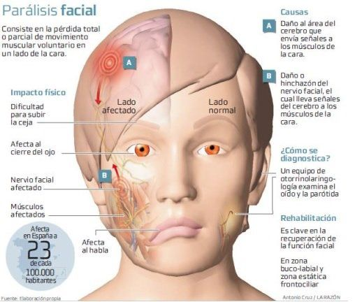 Parálisis facial, causas, síntomas, rehabilitación ...