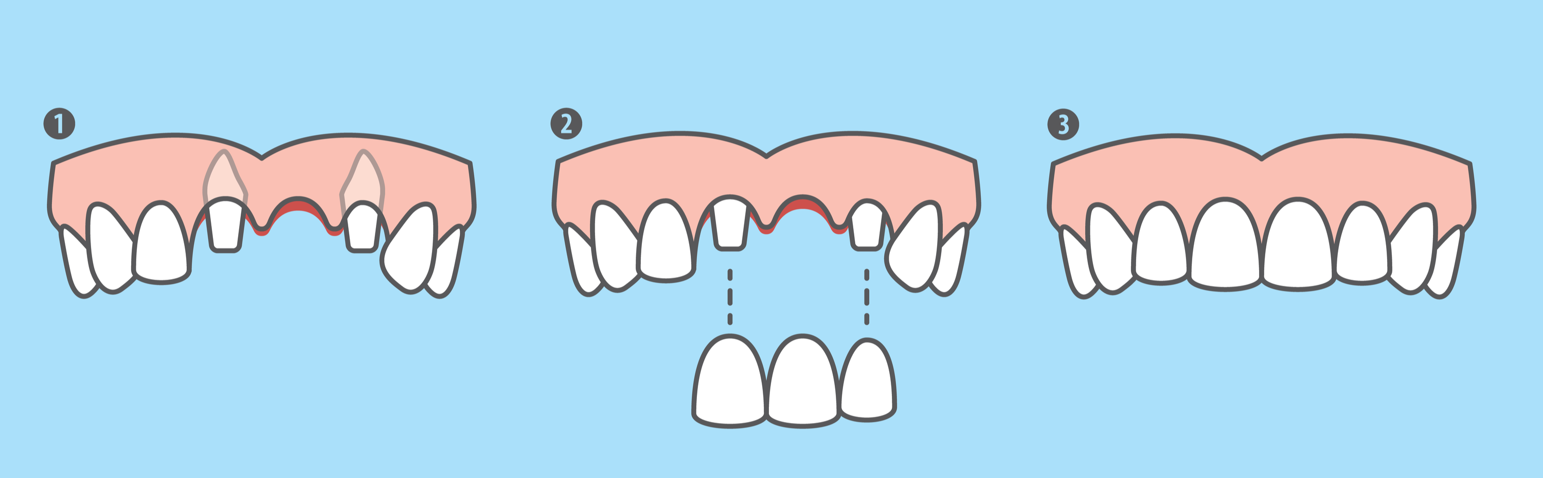 3 Options For Replacing Missing Teeth Dentalfacts In
