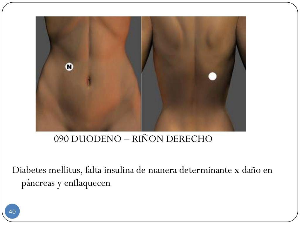 090 Duodeno Riñon Derecho Diabetes Mellitus Falta Insulina De Manera Determinante X Daño En Páncreas Y Enf Par Biomagnetico Acupuntura Puntos Magnetoterapia