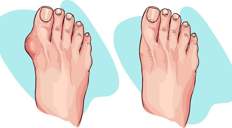 how to get rid of bunions on feet naturally