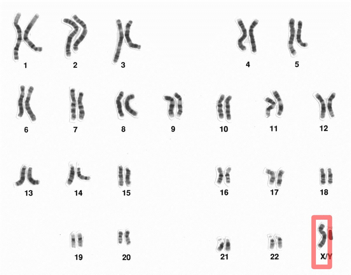 The Female X Chromosome Determines Intelligence Pixabay Chromosome X Chromosome Biological Gender