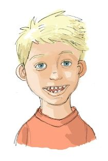 """Part 2: How does the disease manifest? Frequent symptoms of children with AS are microcephaly (disproportional and small head size) and epilepsy that manifests during the age of less than three years old. They also have wide mouth and wide-spaced teeth with frequent drooling. Their facial composition are described as """"coarse"""" because of the distinct features. Withal, their fair skin is associated with light-colored hair or scoliosis. However, their life expectancy is not to be affected."""