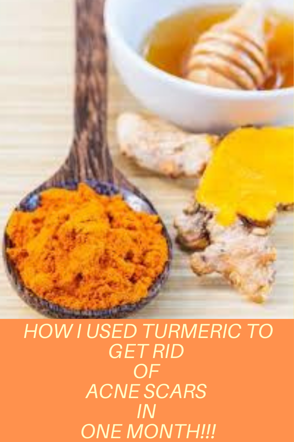 Photo of How to use turmeric to get rid of acne scars in one month!!!
