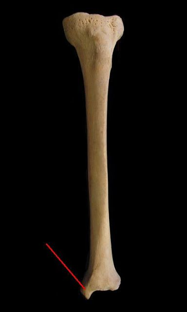 long major bones tibia (general view): medial condyle: lateral, Human Body