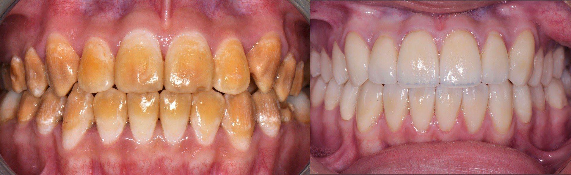 remedio casero para eliminar el sarro delos dientes