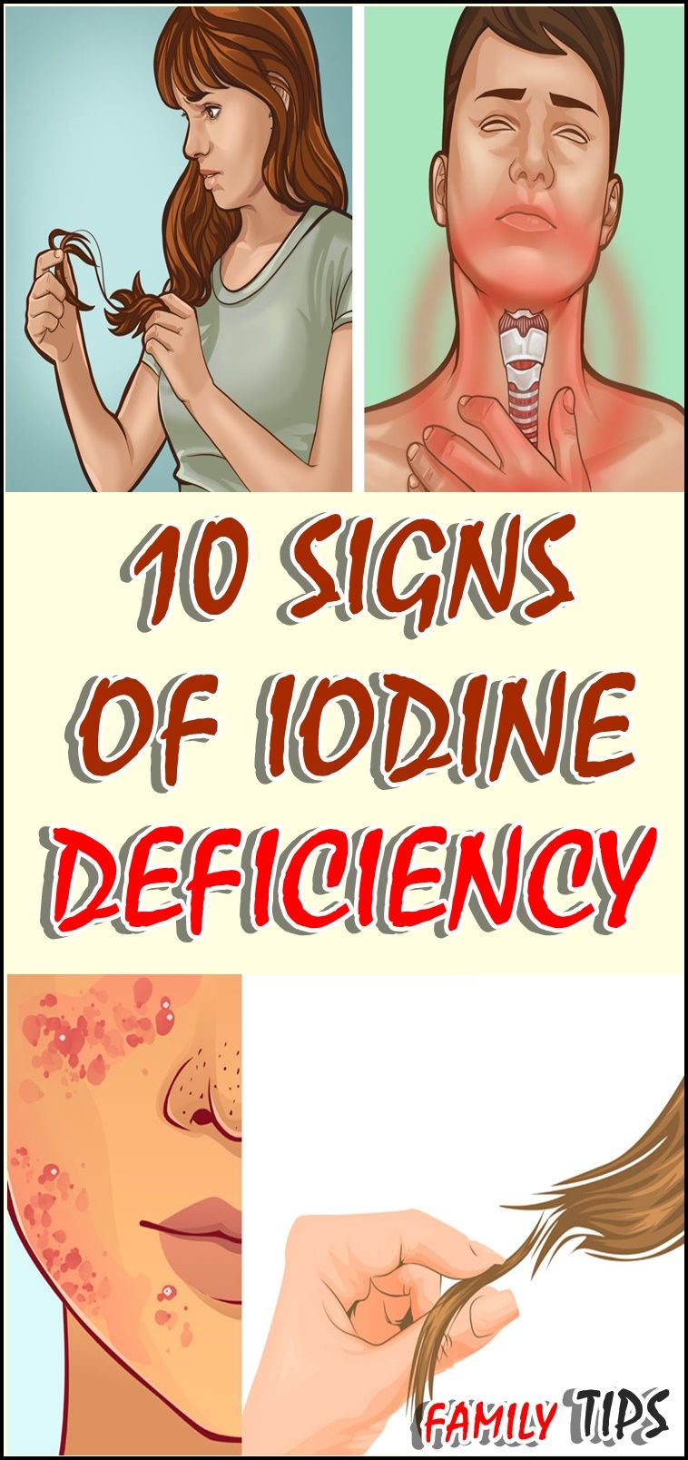 10 Signs Of Iodine Deficiency Iodine Deficiency Iodine Iodine