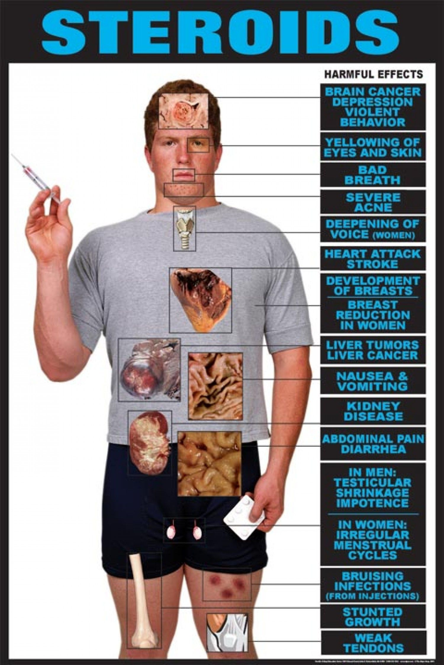 Effect of steroids on esr mazatek steroids