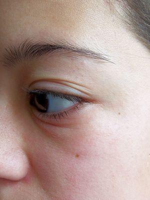 Healthfully Remedios Para Ojos Hinchados Parpados Hinchados Ojos Hinchados