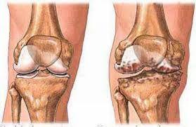 Can rheumatoid arthritis cause jaundice