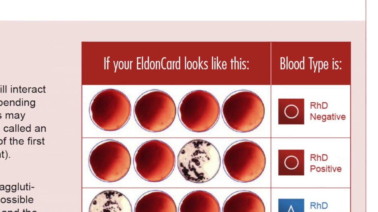 Blutgruppen Schnelltest für zu Hause. So einfach kann die Blutgruppe ...