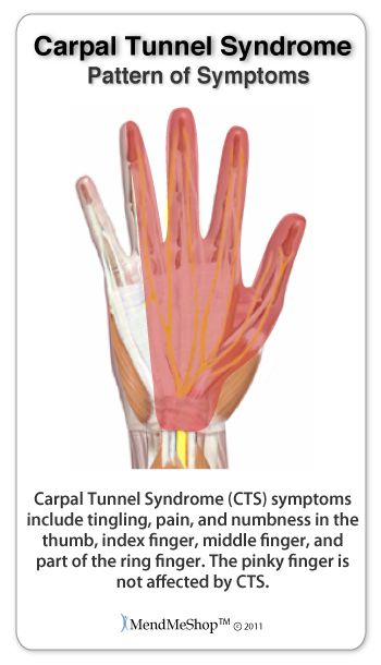 Common carpal tunnel syndrome symptoms include: Tingling or numbness