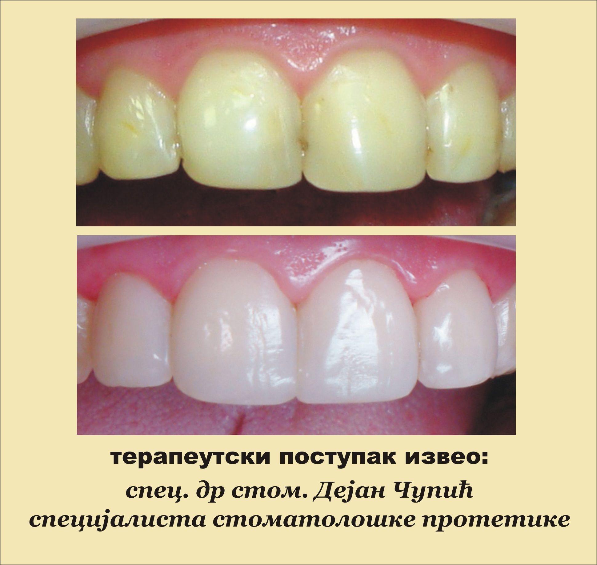 Lasersko izbeljivanje zuba cena novi sad