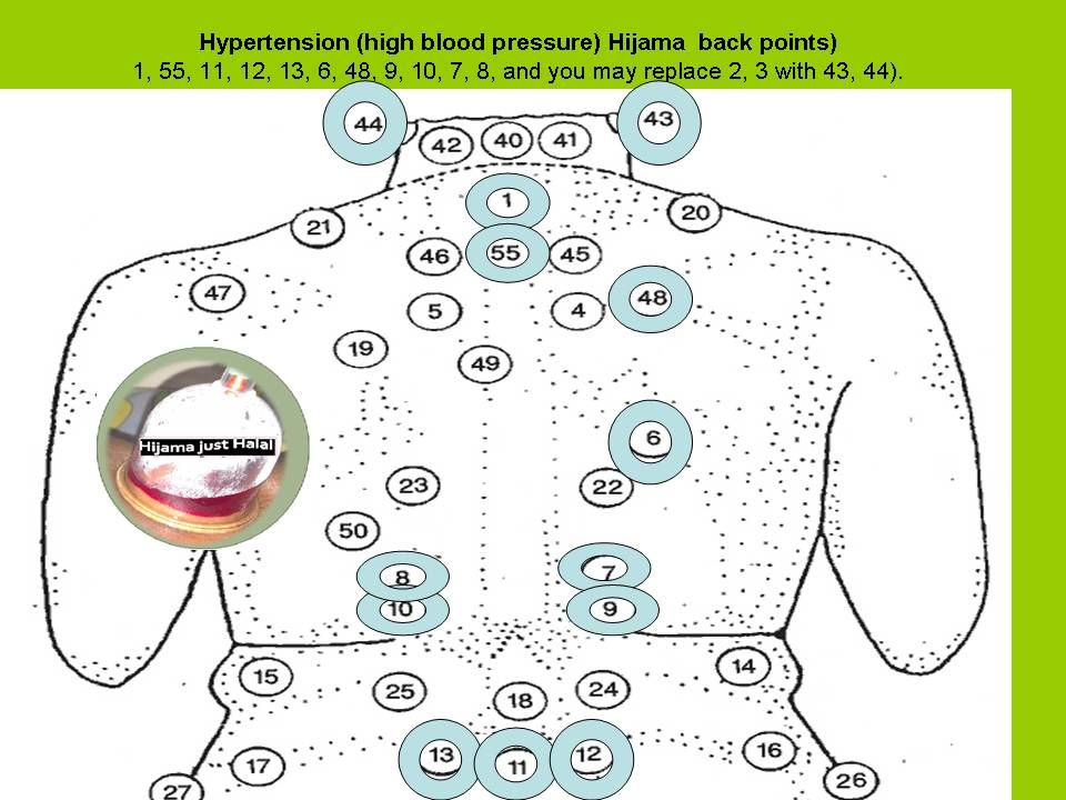 Chinese cure for hypertension