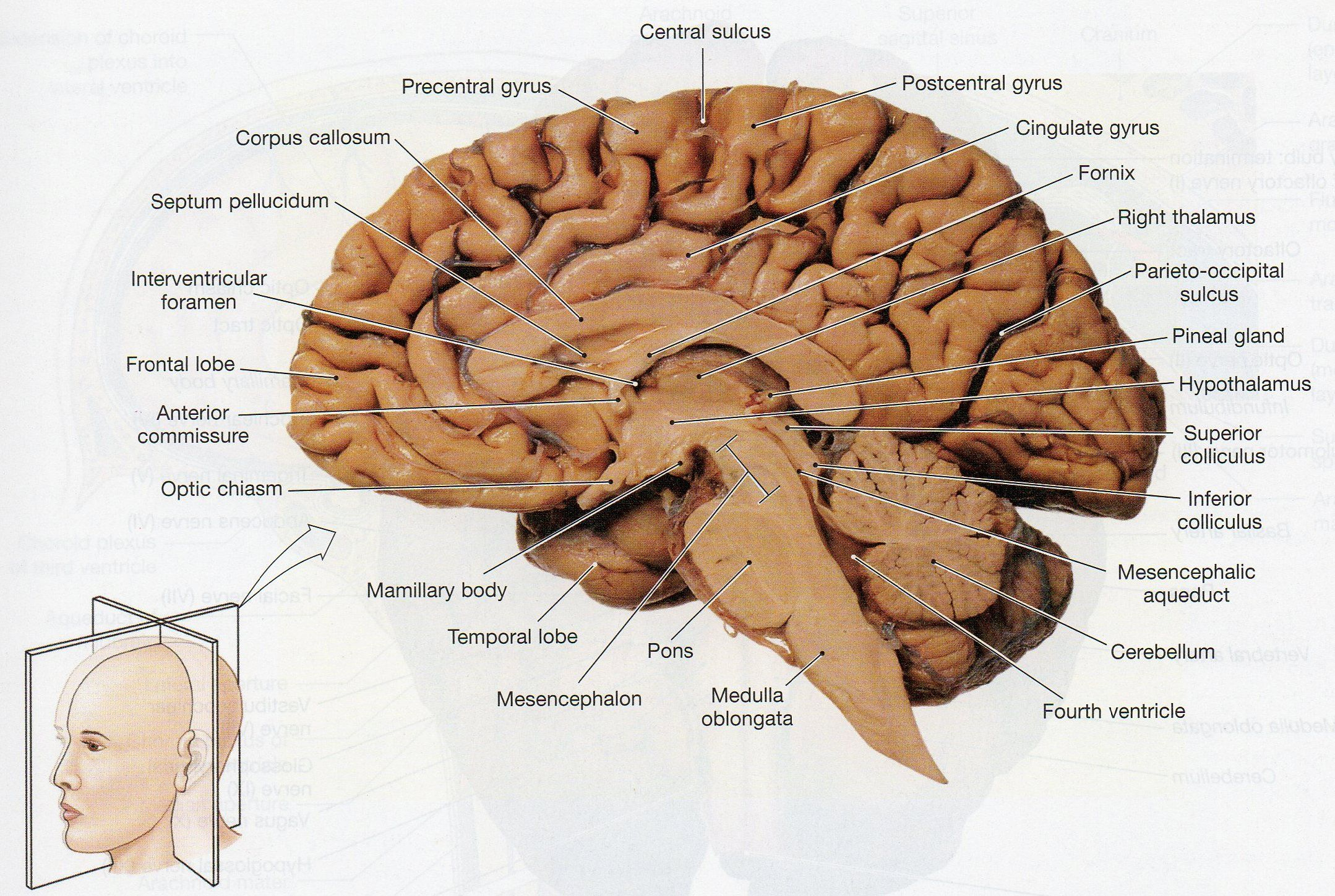 Image result for sheep brain labeled | Brain diagram ...