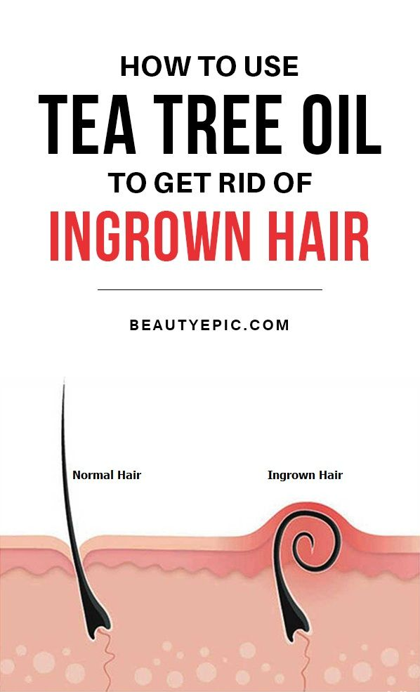 How Effective is Using Tea Tree Oil for Ingrown Hair | hair