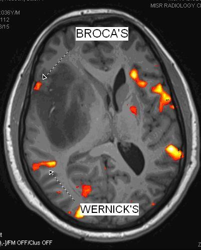 broca's area mri - Поиск в Google
