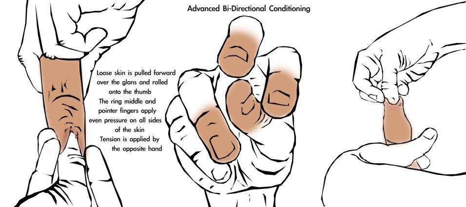 Penis circumcion restoration
