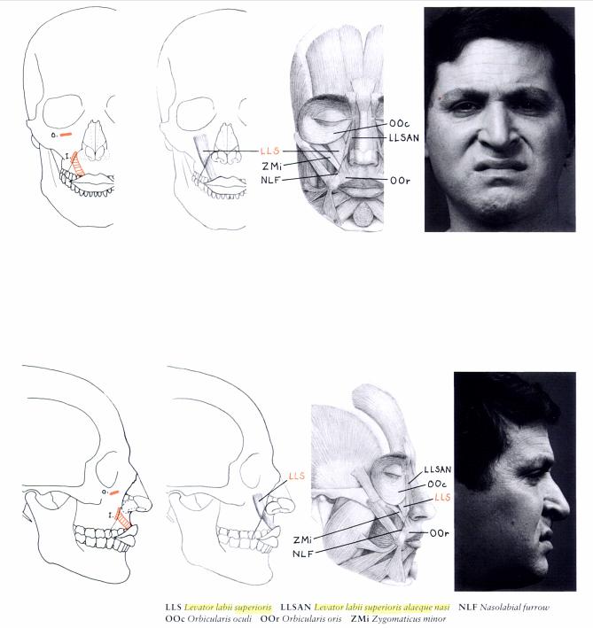 levator labii superioris alaeque nasi goldfinger | Anatomy ...