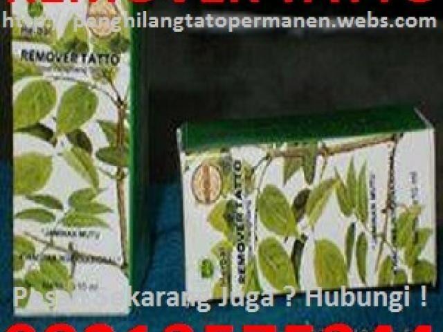 Pusat Obat Penghilang Tato Permanen 082135753444 Semarang Iklan Lokal Tinta Tato Penghilang Kutil Jenis