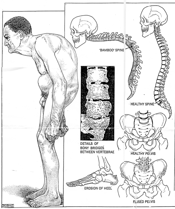 The history causes and characteristics of ankylosing spondylitis an inflammatory disease