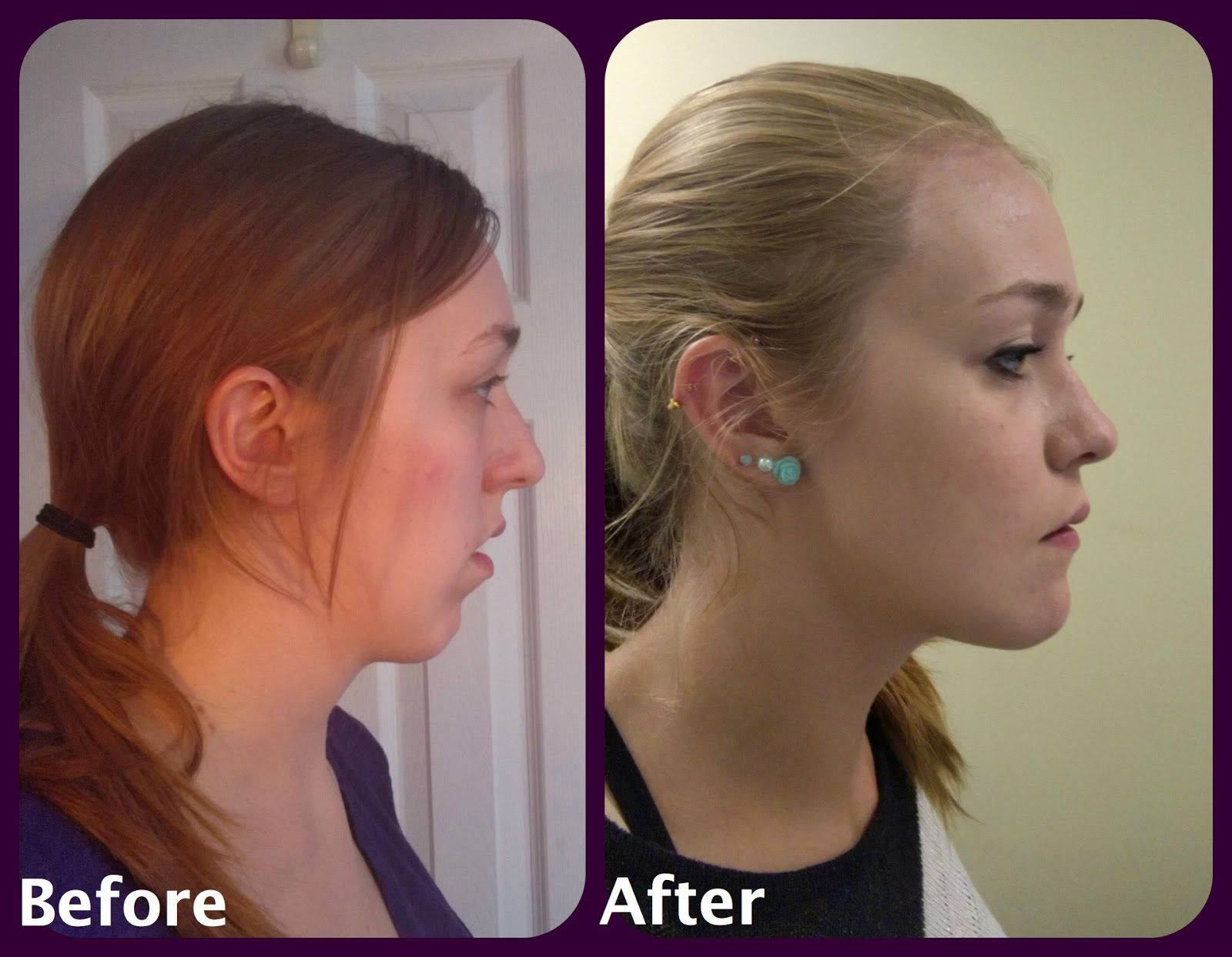 Pin By Kellie Zach On Surgery Jaw Surgery Surgery Orthognathic Surgery