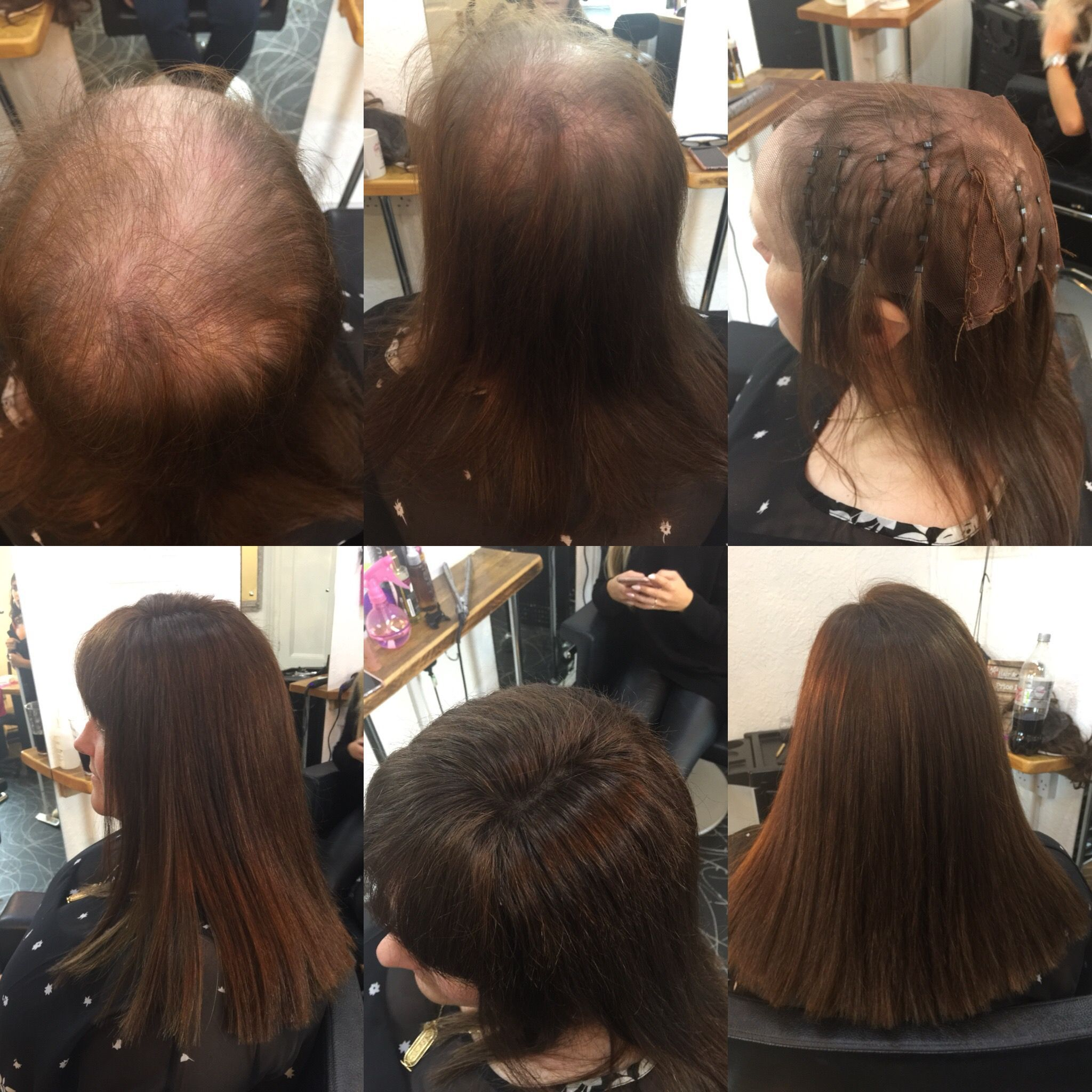 Hair Loss What Hair Loss Our Mesh Integration System Is Designed