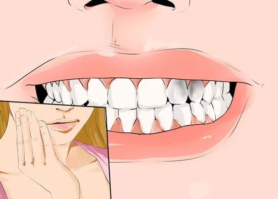 Dental Cavities Naturally