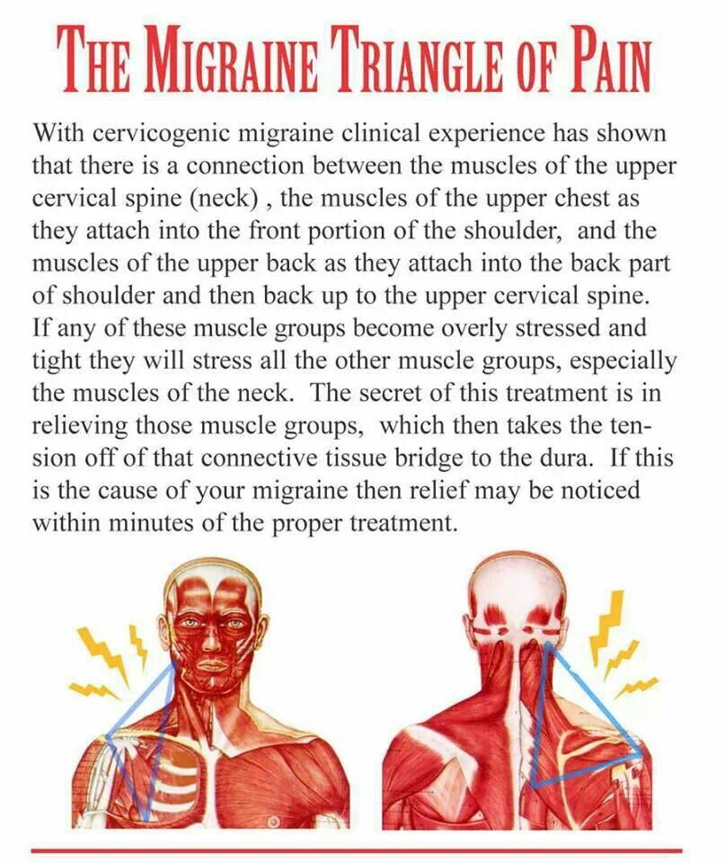 Migraine Triangle | Health | Pinterest | Migraine, Triangles and ...