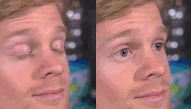 White Guy Blinking Sticker By Cheesy Puffs Blinking Guy Meme Create Memes Meme Template