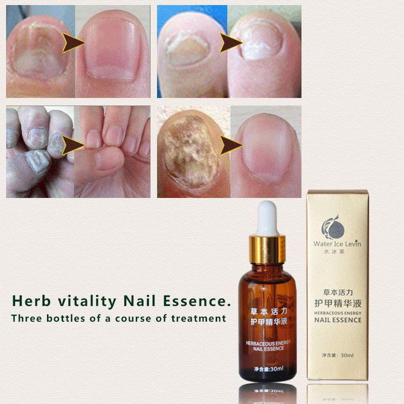 1Pcs Water Ice Levin Fungal Nail Treatment Essence Nail and Foot ...