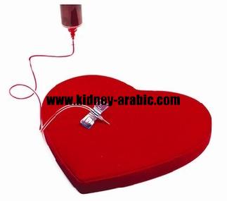 يستخدم تبادل البلازما لإزالة العلاج تنقية الدم الجزيئات في الدم العملية الأساسية هي ضخ الدم إلى دم المريض استخلاصه Electronic Products Computer Mouse Computer