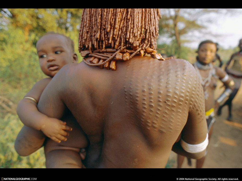 "Ethiopia, Africa ""Skin. Its color can cause irrational ..."