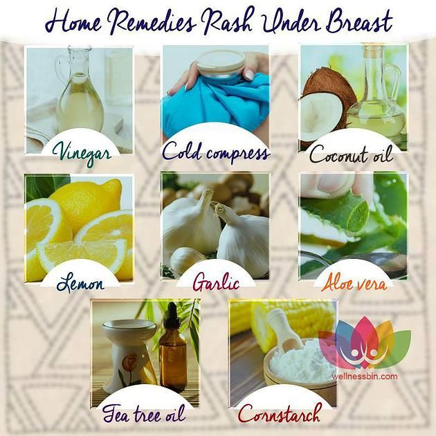 Rainbow Gospel Radio | Home Remedies for Rash Under Breast