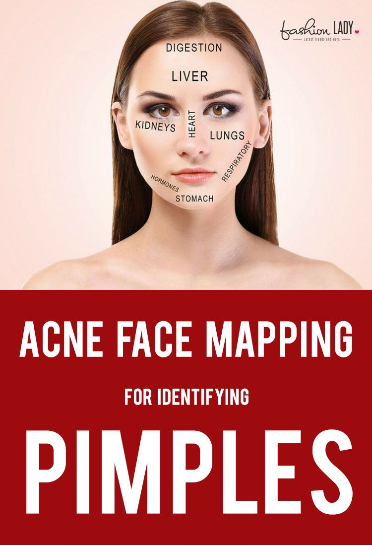 Acne Face Mapping The Best Guide To Find Causes And Solutions