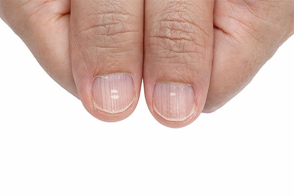 Do You Have Dark Vertical Lines On Nails What Are They Actually White Spots On Nails Lines On Nails Fingernail Health Signs