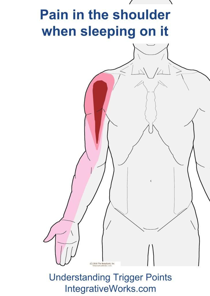 Understanding Trigger Points Shoulder Pain When Sleeping On Your