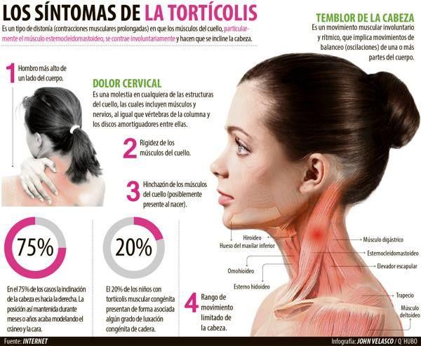 Los Síntomas De La Tortícolis Fisioterapia Dolor De Cuello Cuerpo Infografia Salud