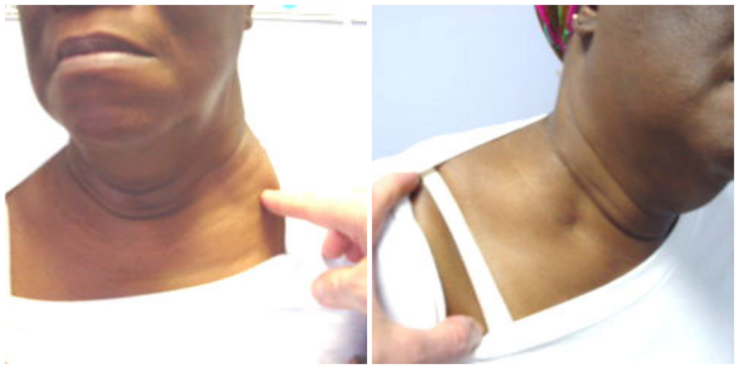 itching breast on the left side