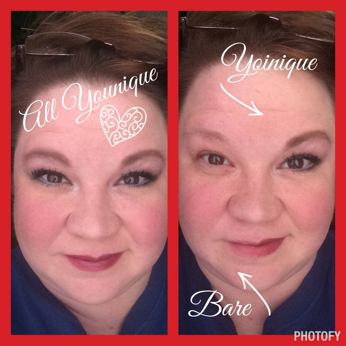 before and after using younique products www