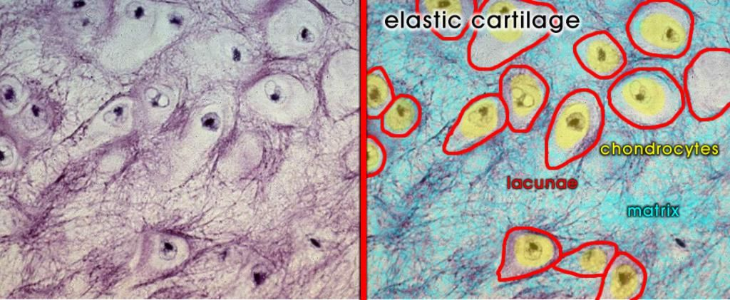elastic cartilage labeled - Google Search | Tissues ...