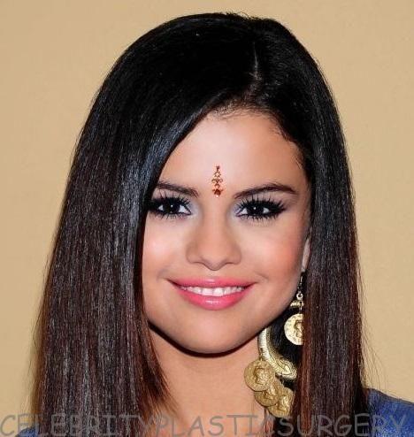 Selena gomez nose job selena gomez plastic surgery before and selena gomez nose job voltagebd Gallery