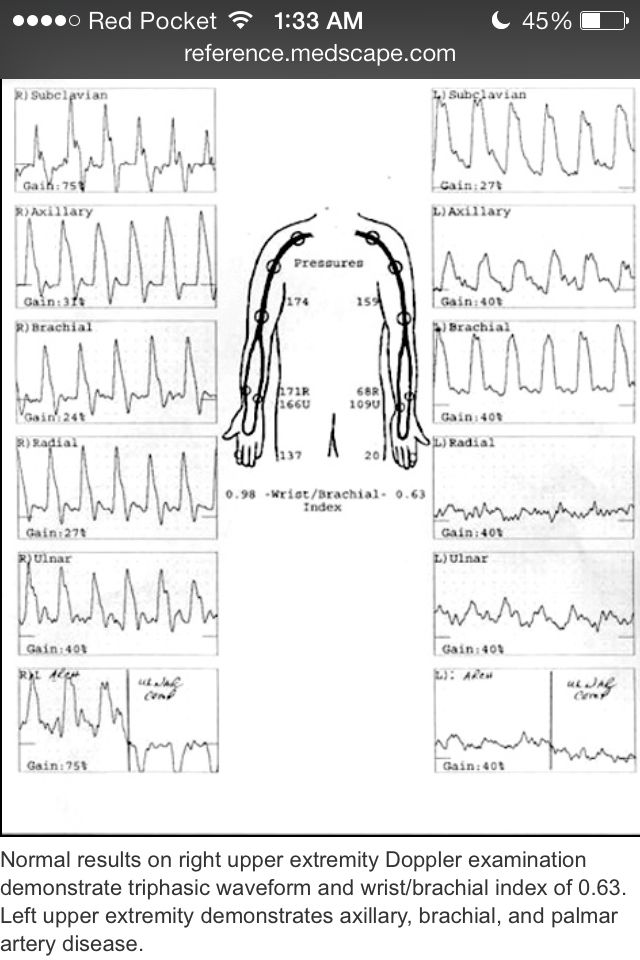 upper extremity venous ultrasound worksheet pictures to pin on pinterest thepinsta. Black Bedroom Furniture Sets. Home Design Ideas