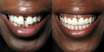 What are some good message boards about Invisalign?