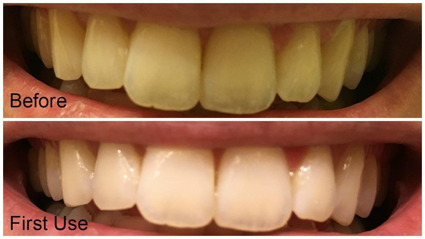Colgate teeth whitening teeth whitening products pinterest teeth - Amazon Com Auraglow Teeth Whitening Gel Syringe Refill Pack 35 Carbamide Peroxide