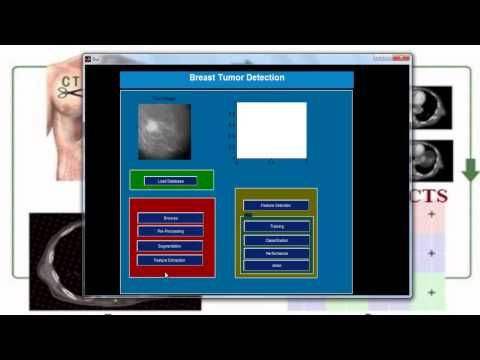 Matlab Simulation Projects | Matlab Simulation Project | Matlab
