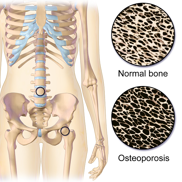 15+ Osteoporosis is often associated with low intake of information
