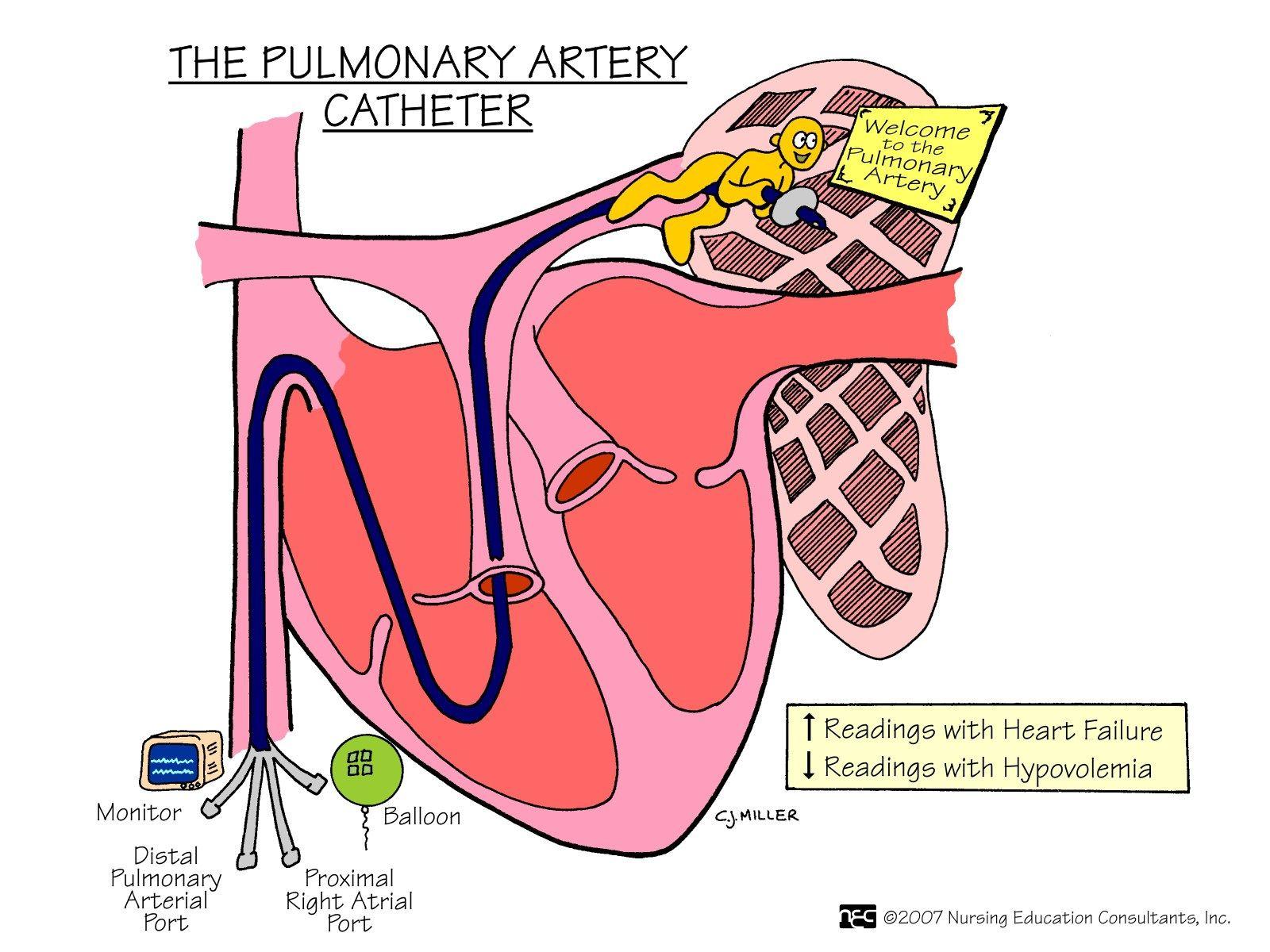 The Pulmonary Arterial Catheter | Med Surg Mnemonics & More ...