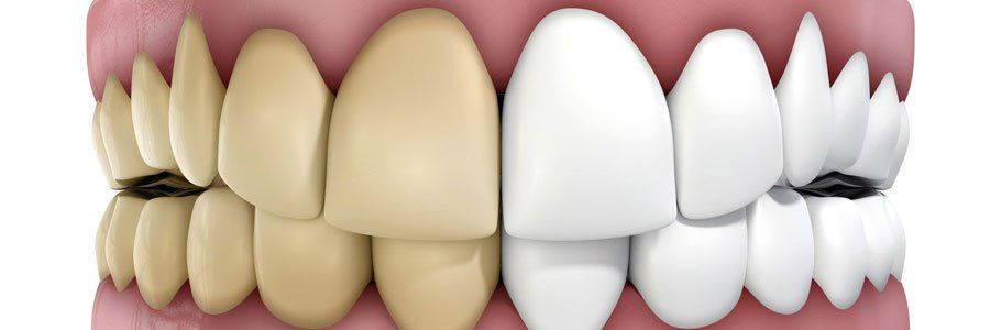 Cosmetic dentist in delta address teeth discoloration