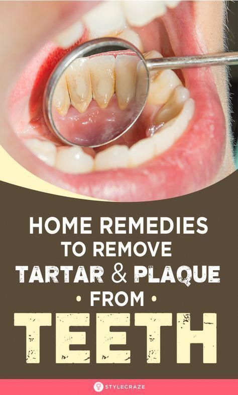 Oral Care Health: Your Oral Hygiene Specialist - H